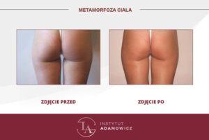 Izometryczny masaż próżniowy efekty zabiegu po i przed