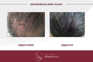 Metamorfoza skóry głowy - włosy