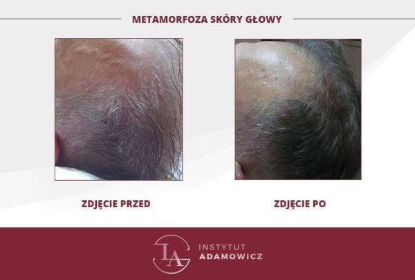 Metamorfoza skóry głowy